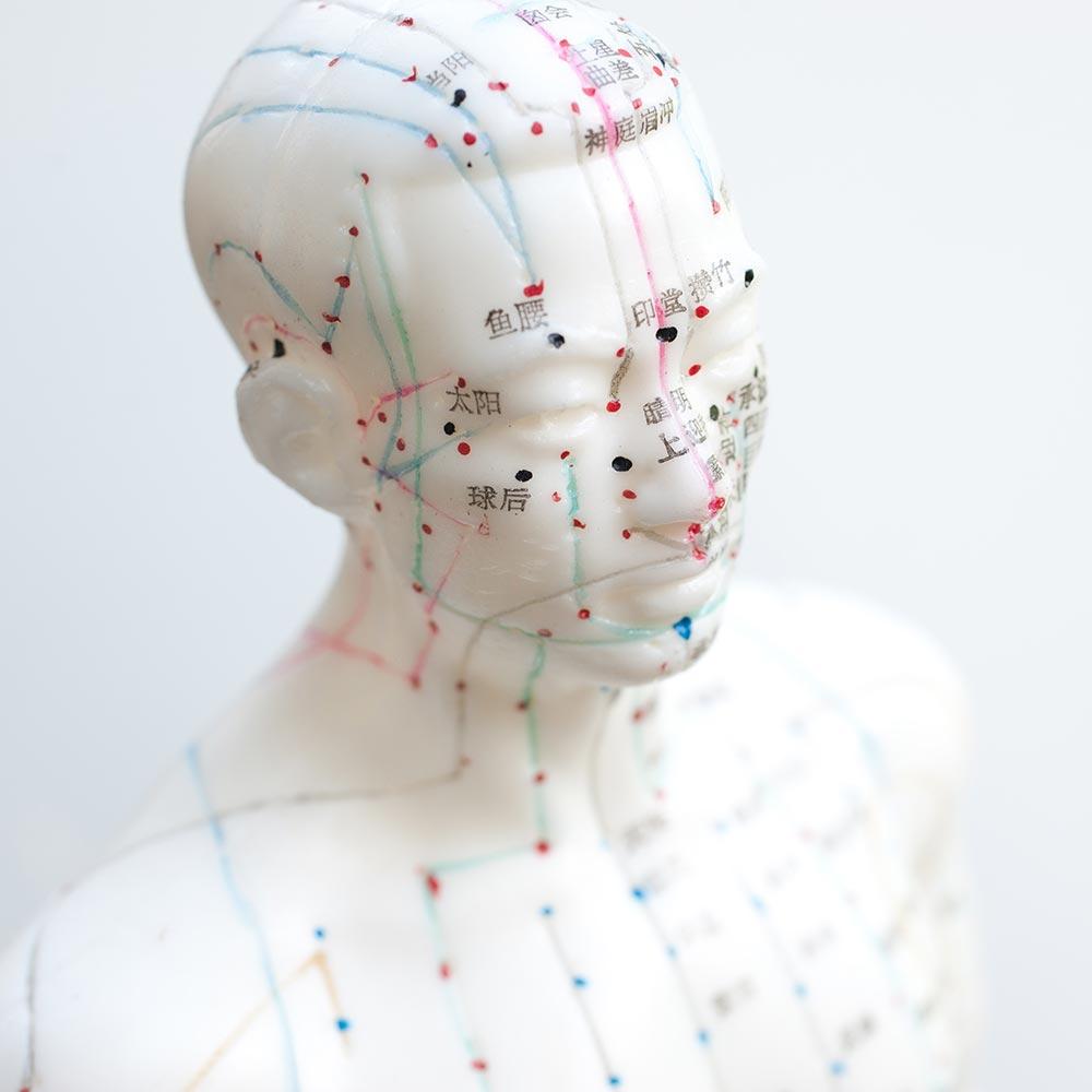 agopuntura-interna
